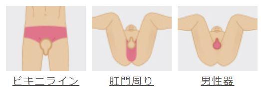 メンズリゼ(VIO)デリケートゾーンセットの脱毛箇所