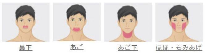 メンズリゼひげ脱毛部位説明