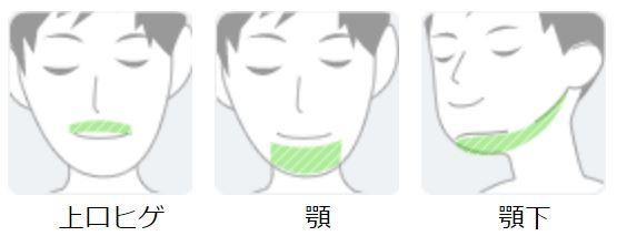 ひげ3箇所