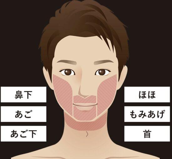 メンズエミナルクリニックのひげ脱毛